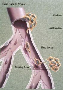 Metastasis illustration