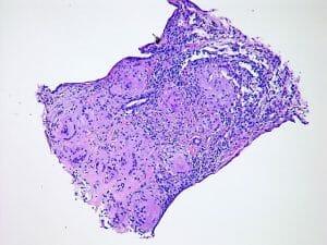 Kasus Biopsi Inti