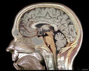 Garpen Brain