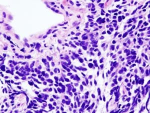Lung small cell carcinoma