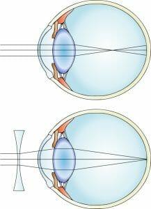 Myopia color
