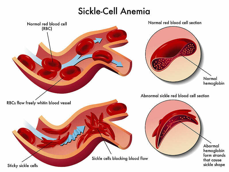 Risk Factors for Sickle Cell Anemia