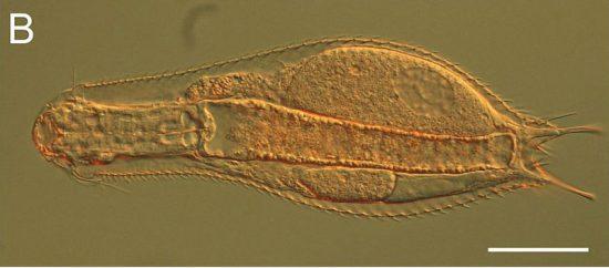 Chaetonotidae