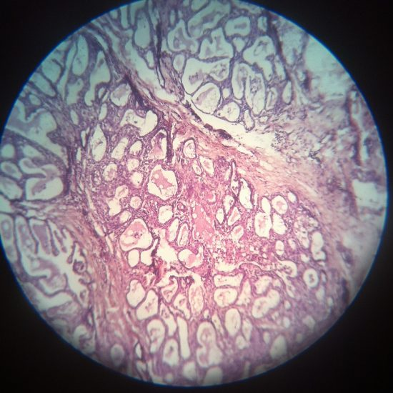 Lactating Mammary Gland