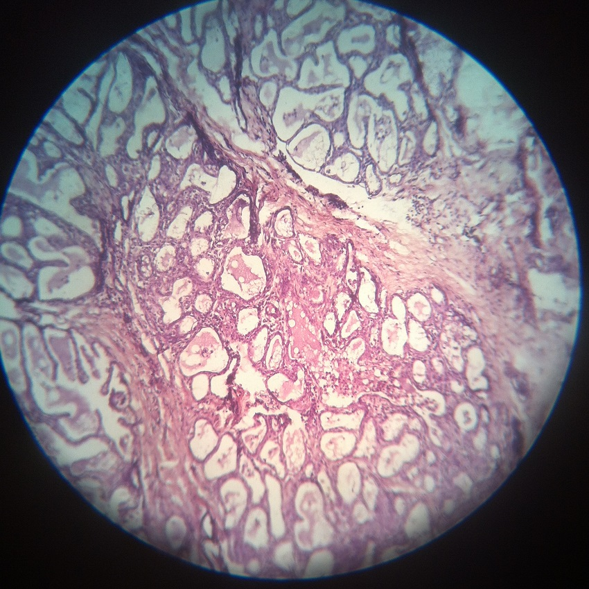 Stratified Cuboidal Epithelium - Definition and Function ...