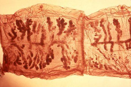 Internal anatomy of a tapeworm