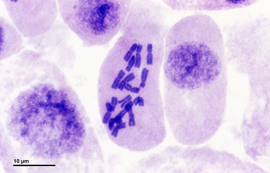 Metaphase in an onion cell