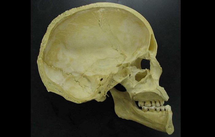 Midsagittal section of the human skull