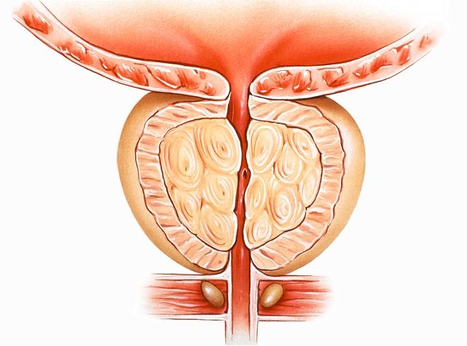 Narrowed urethra in BPH