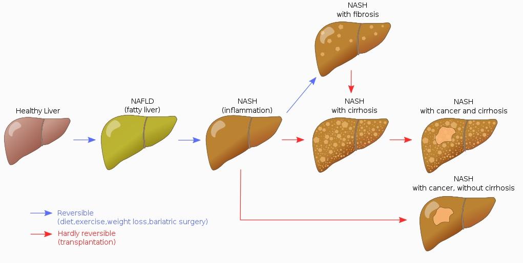 Fatty liver disease progression