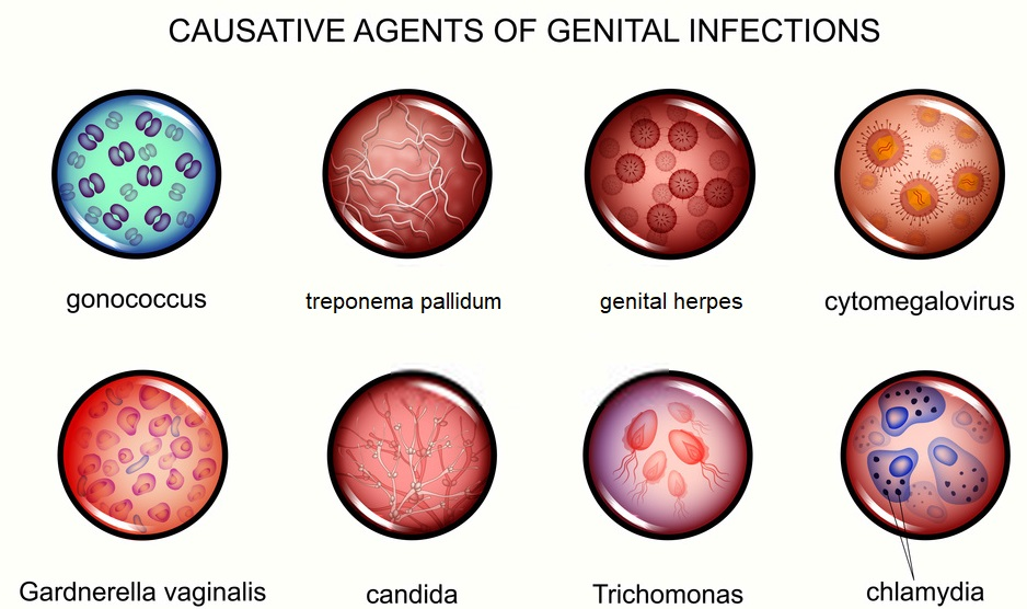 Most common STD causes
