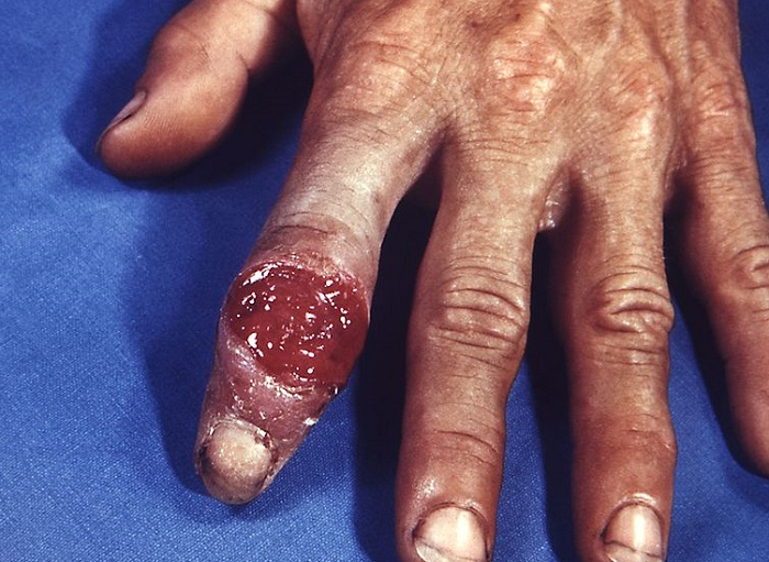 Extragenital syphilitic chancre