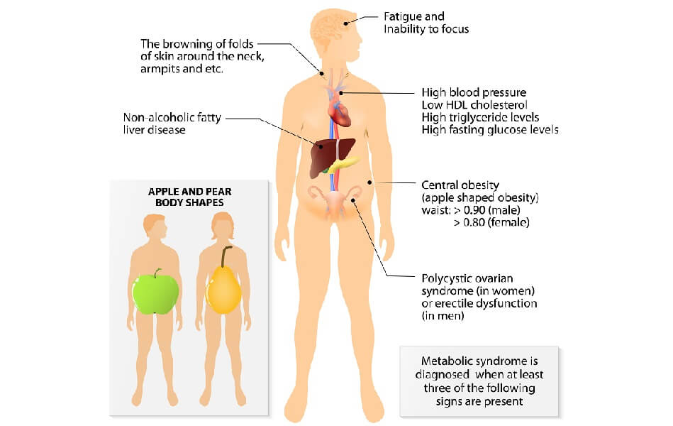 adipose tissue apple pear shape visceral subcutaneous fat metabolic syndrome
