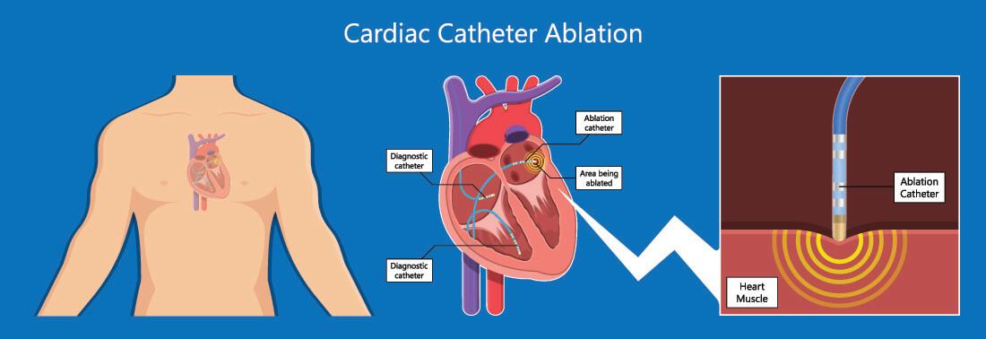 cardiac catheter ablation therapy arrhythmia surgical procedure percutaneous