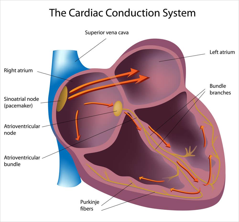 cardiac conduction junctional rhythm arrhythmia electrical
