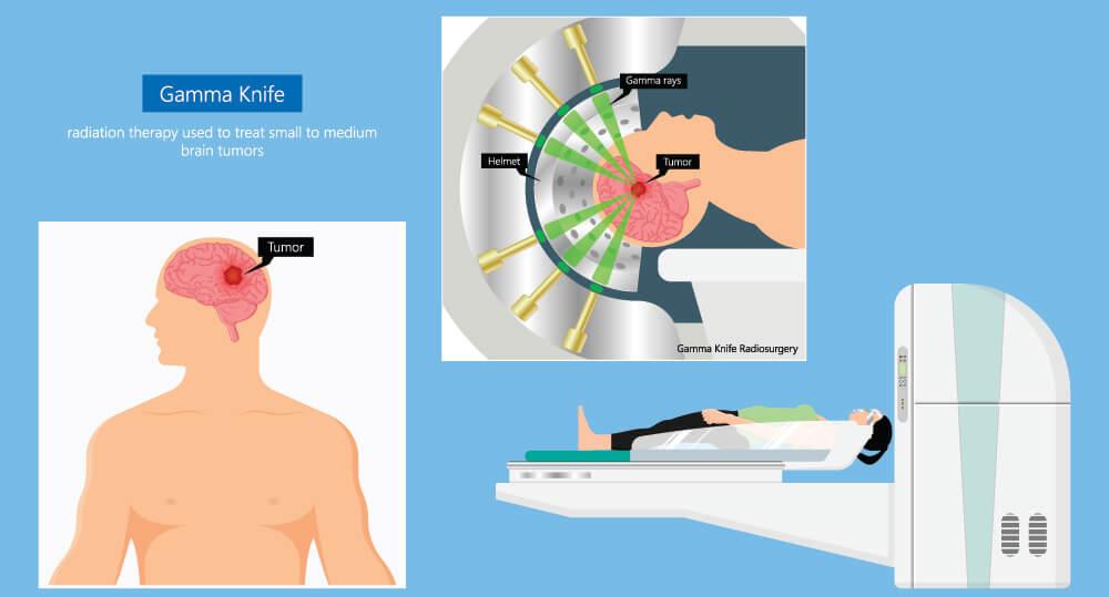 gamma knife cyberknife trigeminal neuralgia surgery cancer cranial