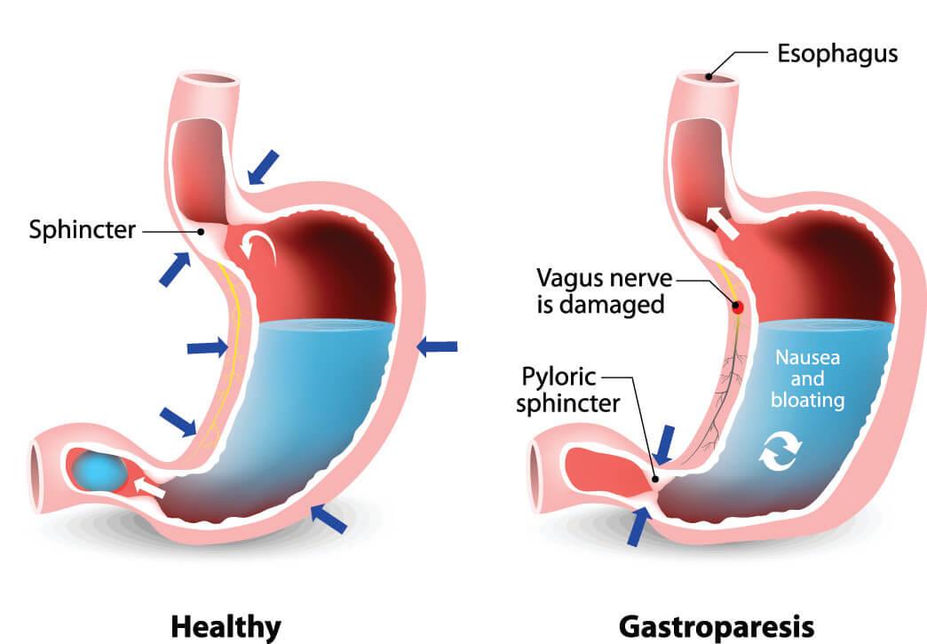 gastroparesis vagus nerve vagal