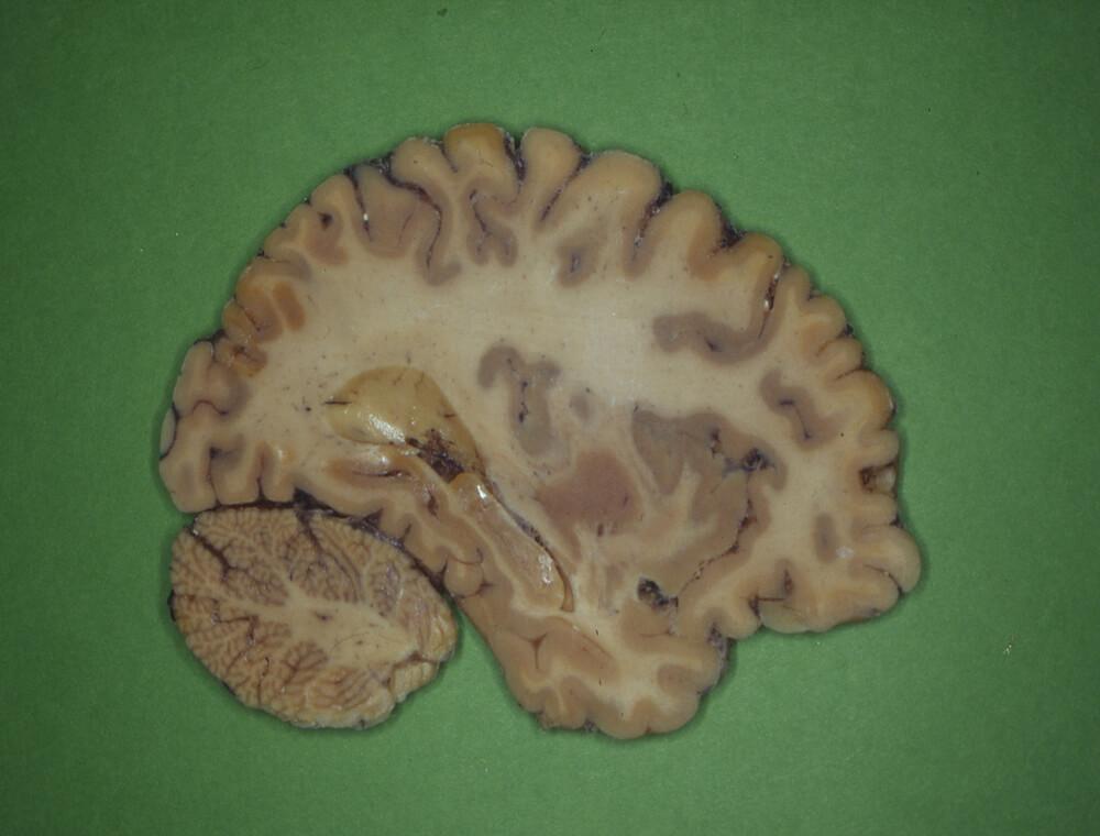 gray white matter brain cadaver sample cerebrum cerebellum