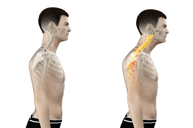 Head forward posture or upper crossed syndrome