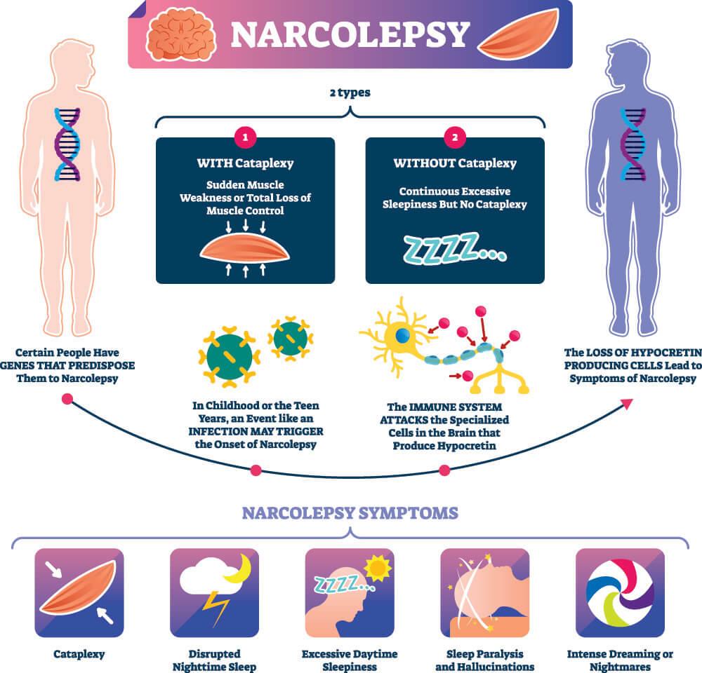 narcolepsy cataplexy circadian rhythm sleep disorder neurology