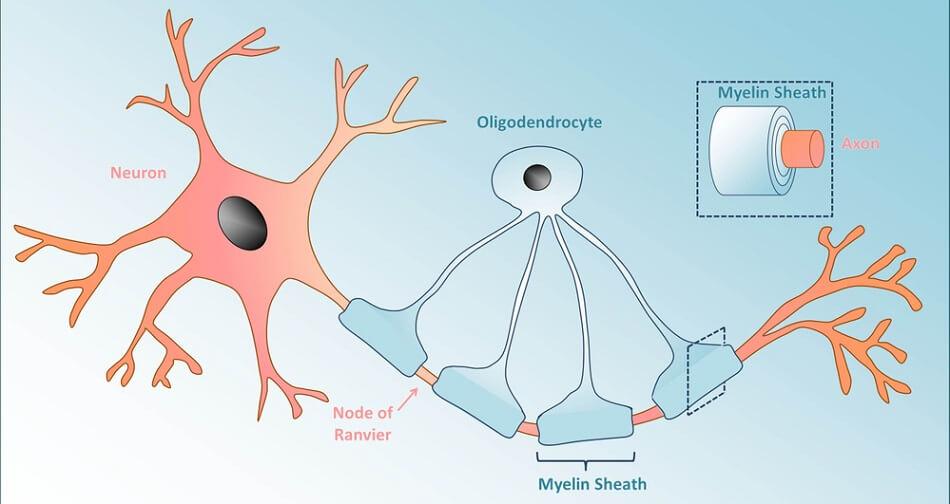 oligodendroctye myelin glia glial cell