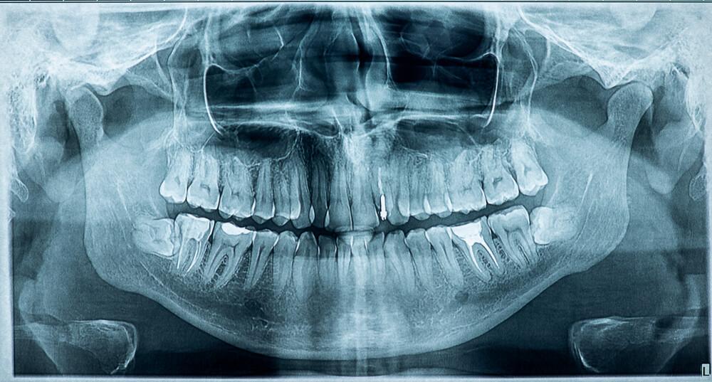 dental film trigeminal nerve teeth maxilla mandibula jaw