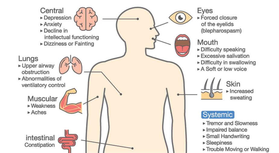 parkinson's symptoms neurodegenerative motor cognition