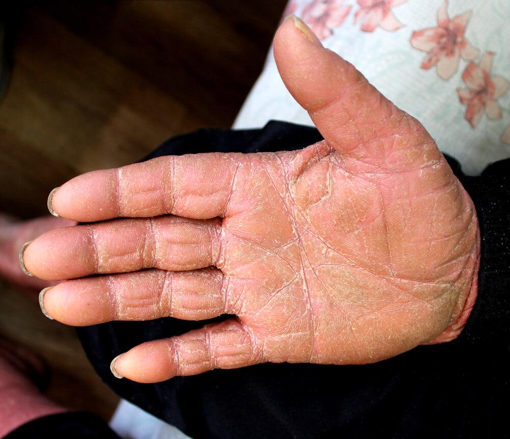palmoplantar keratoderma genetic chromosome hand palm skin flaky