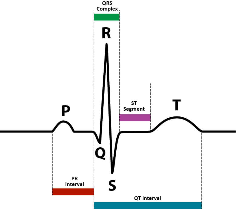 electrocardiogram ecg p wave QRS complex T electrical activity