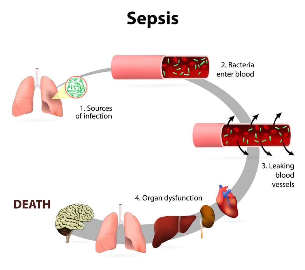 sepsis staphylococcus aureus infection septicemia organ failure