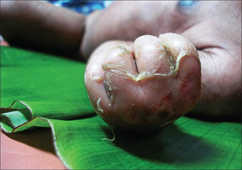 staphylococcus scalded skin syndrome ssss infection