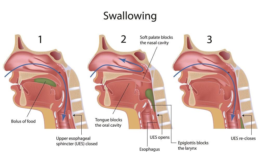 swallowing reflex CN IX 9 cranial nerve choking