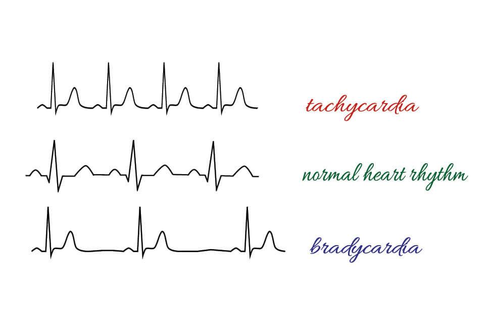 tachycardia bradycardia ecg electrocardiogram rhythm heart rate