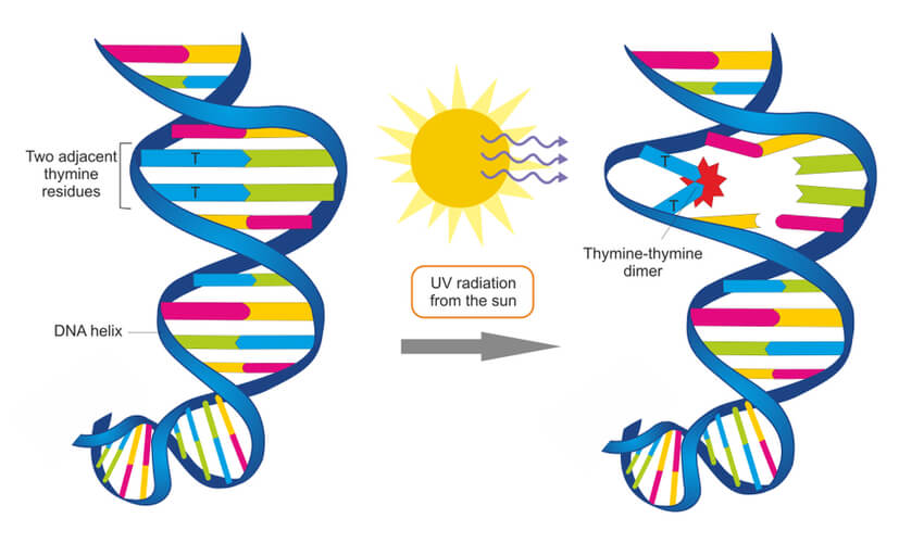 Normal DNA pointing to damaged DNA with thymine dimer after UV radiation