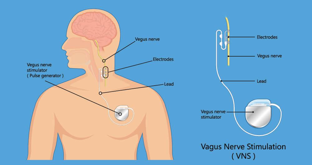 vagal nerve stimulation