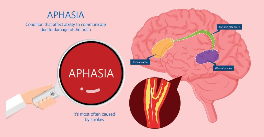 broca's area aphasia wernicke speech language disorder