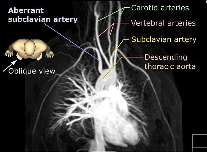 Aberrant subclavian artery