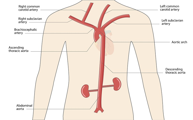The arteries of the thorax, including the subclavian arteries and their branches