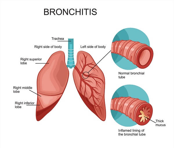 Hyperproduction of mucus by goblet cells can cause bronchitis