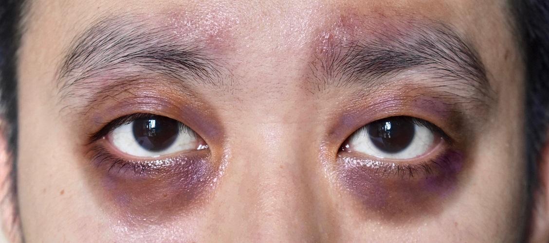 periorbital ecchymosis occipital fracture raccoon eyes battle's sign