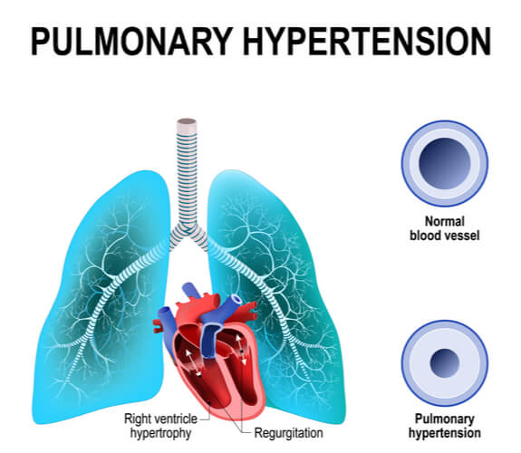 Image of heart attachment to lungs and the resulting narrowed vessels during pulmonary hypertension