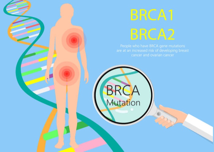 Female silhouette indicating regions at bread and ovaries likely to get cancer with the BRCA mutation