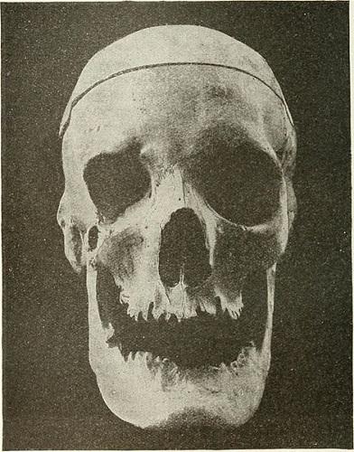 acromegaly gigantism skull mandible IGF-1 GH
