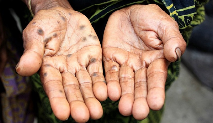 arsenic poisoning toxic