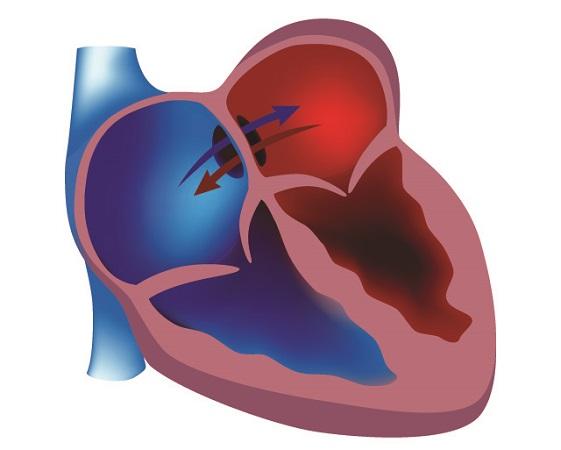 asd atrial septal defect foramen ovale congenital unroofed coronary sinus