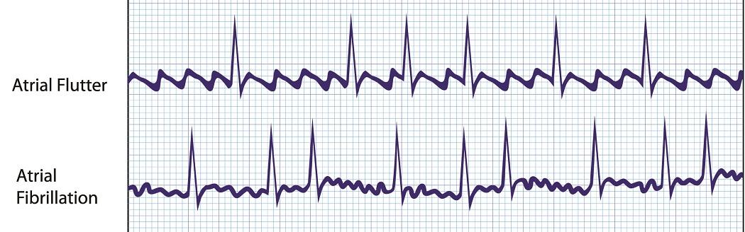 atrial fibrillation flutter p wave atria atrium SA AV node