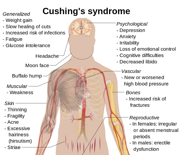 cushing's syndrome disease adrenal pituitary HPA axis symptoms