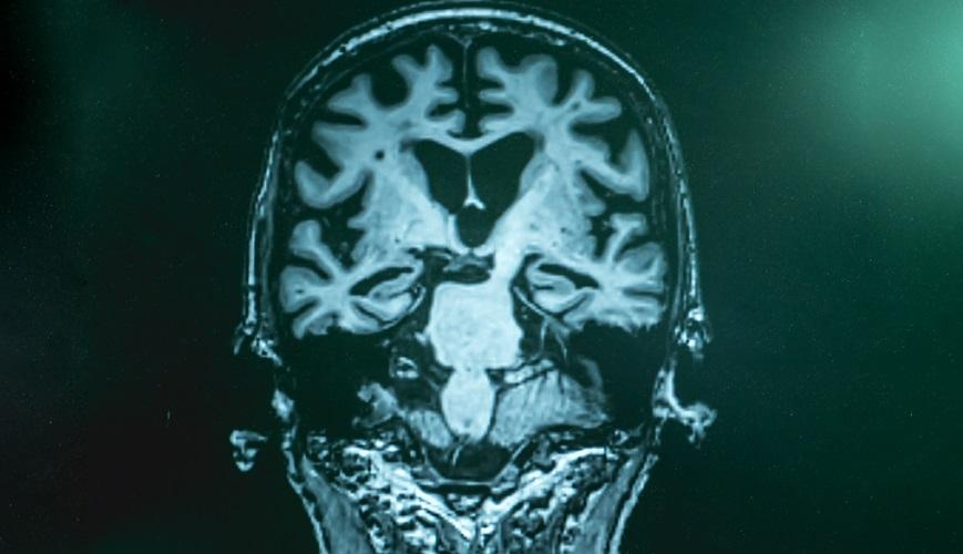 alzheimers demetia brain degeneration IGF-1 neurodegeneration CT