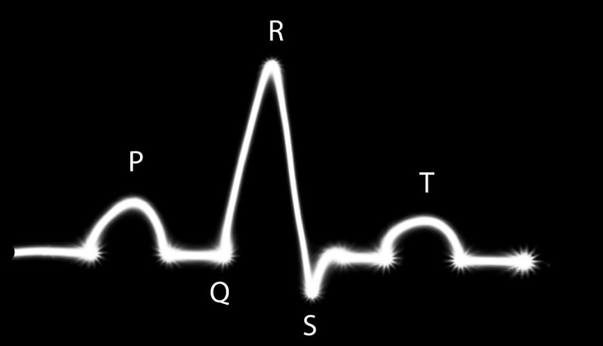 ecg p wave q r s complex t