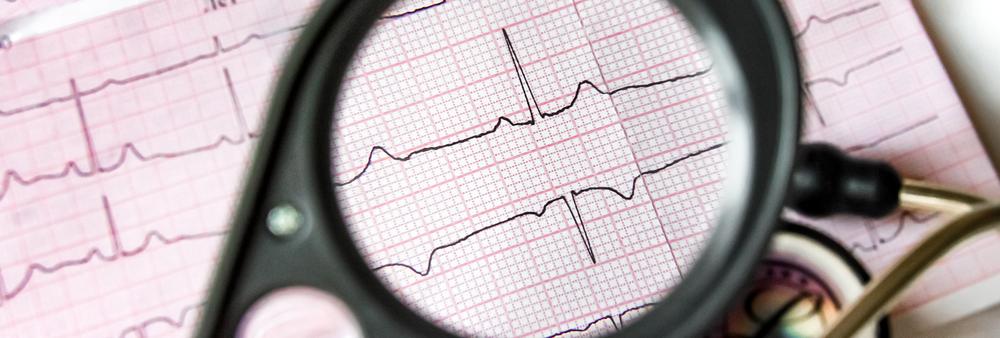 ecg printout graph heart electrical activity P wave QRS complex T